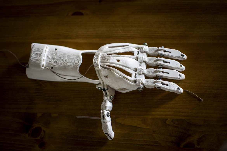 Czy sport z protezą jest możliwy?